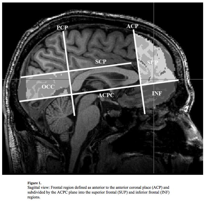 섹스 중독자들의 뇌
