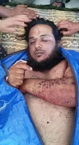 자유시리아군 식인마 아부 사카르 사망